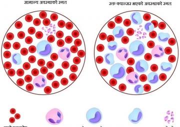 रक्त क्यान्सरको जोखिम