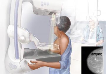 स्तन क्यान्सर पहिल्याउन मेमोग्राम